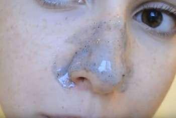 maska-ot-chernyih-tochek-s-zhelatinom